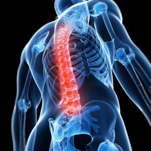 Spine Injury, Spinal Cord Injury